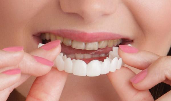 روکش متحرک دندان