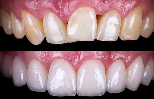 قیمت پروتز دندان
