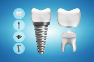 ایمپلنت با گارانتی در کلینیک دندانپزشکی مدرن