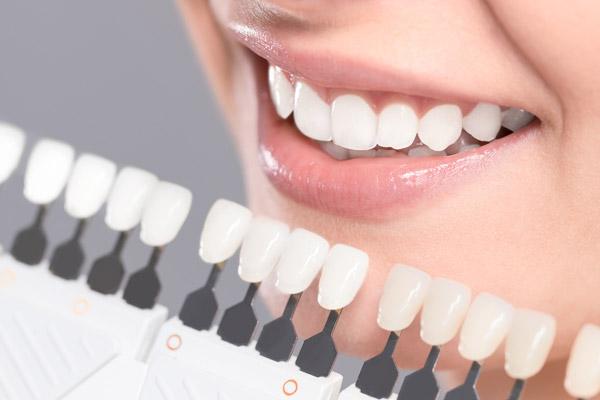 معایب کامپوزیت دندان ، چرا کامپوزیت نکنیم؟