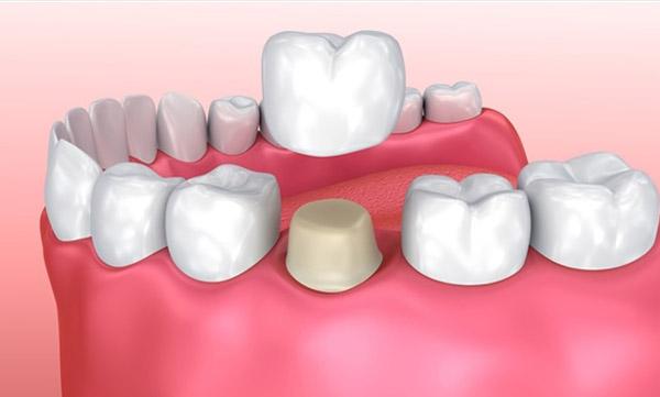 پروتز و روکش دندان