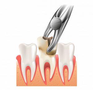 پوسیدگی دندان عقل در زمان قرنطینه کرونا