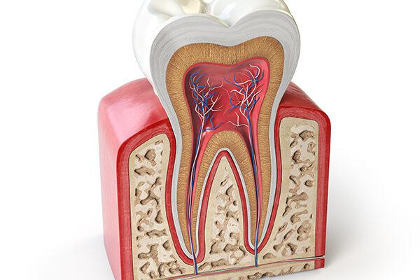 عصب کشی دندان چیست؟ همه چیز درباره درمان ریشه