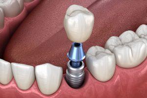 Read more about the article لق شدن ایمپلنت دندانی و دلایل آن