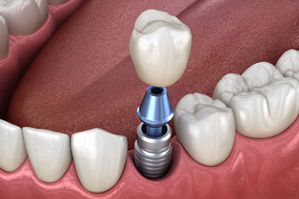 لق شدن ایمپلنت دندانی و دلایل آن