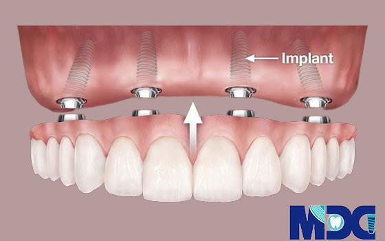ایمپلنت کامل دندان ها-هزینه ایمپلنت کامل چقدر است؟