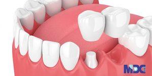 بریج دندانی کانتی لور