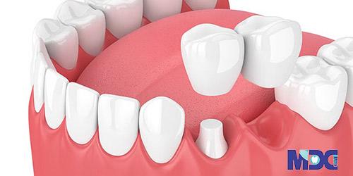 بریج دندانی کانتی لور-کلینیک دندان پزشکی مدرن