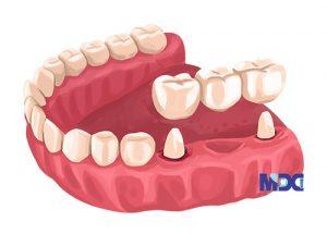 بریج دندان به روش سنتی