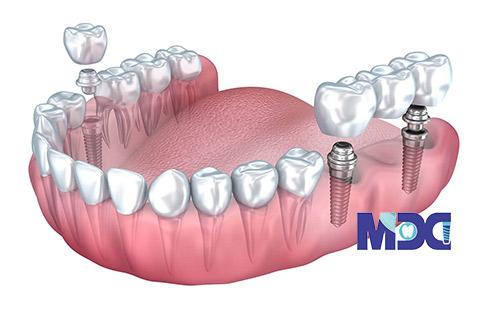 بریج دندان ایمپلنت پایه-کلینیک دندان پزشکی مدرن
