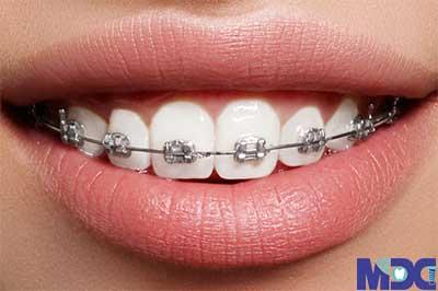 ارتودنسی فوری-کلینیک دندان پزشکی مدرن