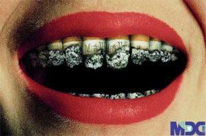 تاثیر سیگار بر ایمپلنت دندان | سیگار کشیدن  و ایمپلنت دندان