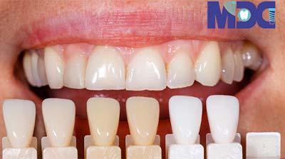 ونیر کامپوزیت | روکش کامپوزیت دندان