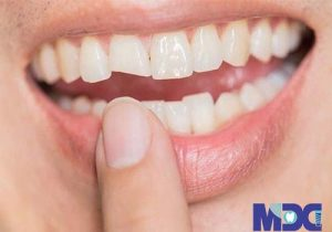 Repair of broken teeth