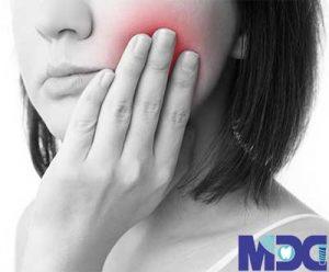 تسکین خانگی دندان درد