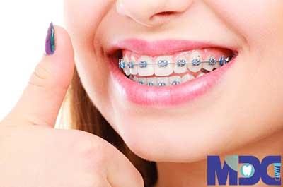 ارتودنسی فوری : راهی سریعتر برای صاف کردن دندان ها
