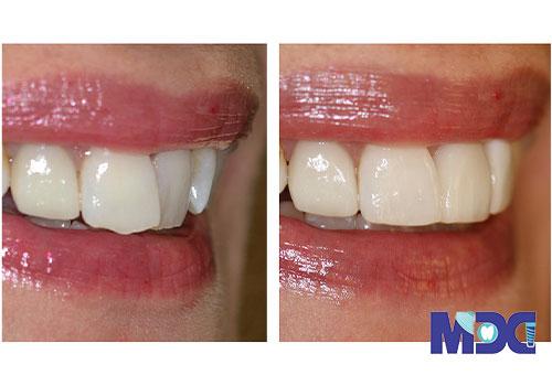 کامپوزیت دندان کج