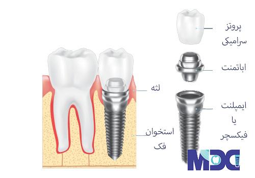 جراجی ایمپلنت دندان