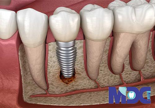 ریشه مصنوعی دندان