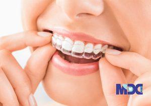ارتودنسی کوتاه مدت | ارتودنسی دندان