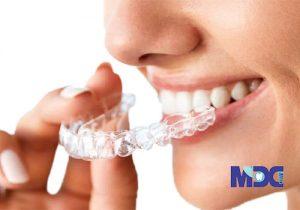 ارتودنسی کوتاه مدت دندان