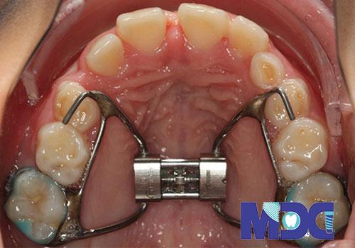 زیبایی دندان بدون نیاز به ارتودنسی