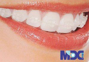 زیبایی دندان بدون ارتودنسی 6 روش این کار